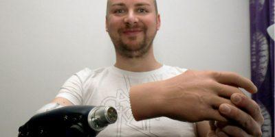 Reconstrucción biónica: Austriacos se amputaron una mano lisiada por un implante útil