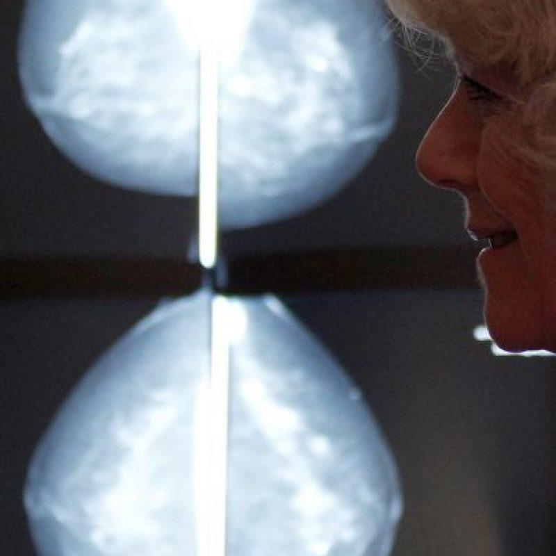 5. En el curso de su vida, una de cada ocho mujeres será diagnosticada con cáncer de mama. Foto:Getty