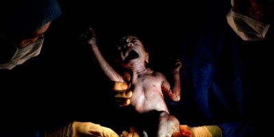 Nacido diciembre 21, 2013 a las 4:31 p.m. 2kg 425 – 15 segundos de vida Foto:Christian Berthelot