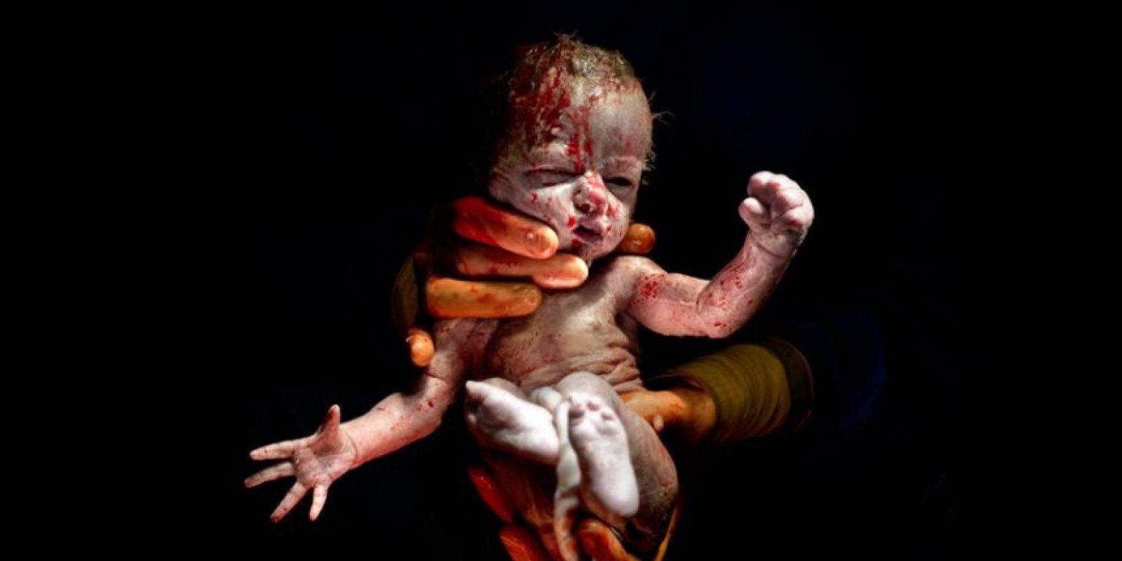 Nacido abril 8, 2014 a las 8:31 am 1kg 745 – 13 segundos de vida Foto:Christian Berthelot