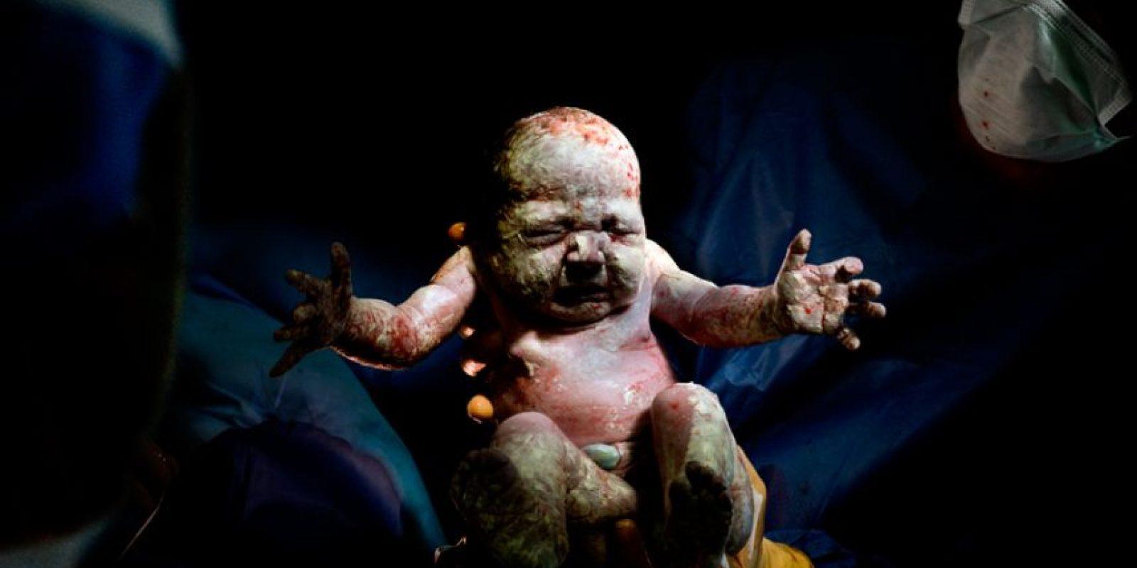 Nacido mayo 20, 2014 a las 10:51 2kg 935 – 8 segundos de vida Foto:Christian Berthelot