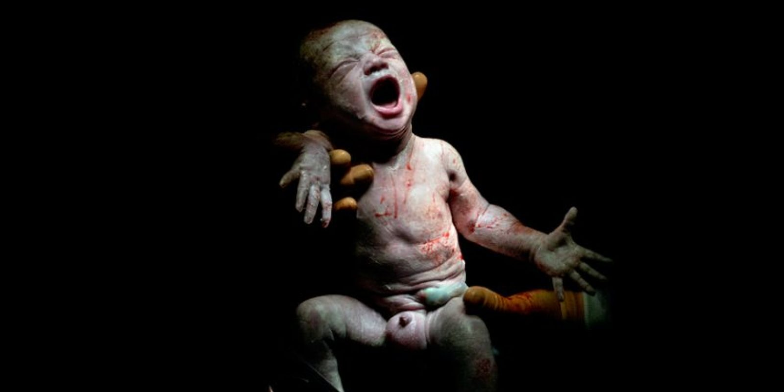 Nacido diciembre 13, 2013 a las 4:52 p.m. 2kg 800 – 18 segundos de vida Foto:Christian Berthelot