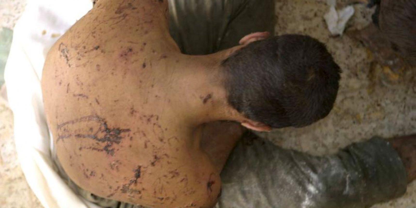 Muchos países de Asia y Oceanía tampoco han tenido éxito en lo relativo a prevenir y castigar la tortura. Foto:Getty Images