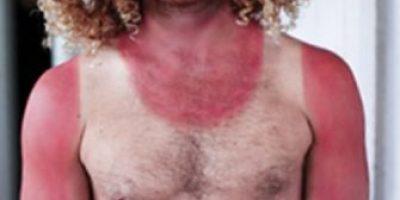 FOTOS: 23 personas que abusaron al asolearse