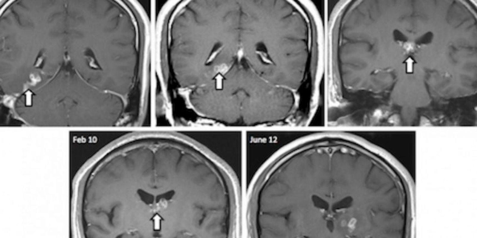 Un hombre tenía dolores de cabeza debilitantes. Hasta que en plenos exámenes descubrieron que tenía un gusano viviendo en su cerebro. Foto:Genome Biology