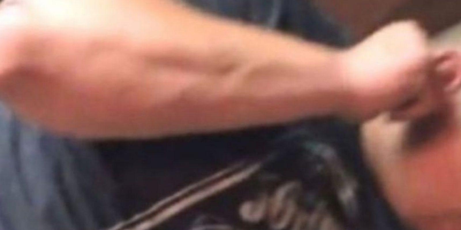 Un hombre de Alabama tuvo que ver cómo le sacaban una de su oreja. Foto:Youtube