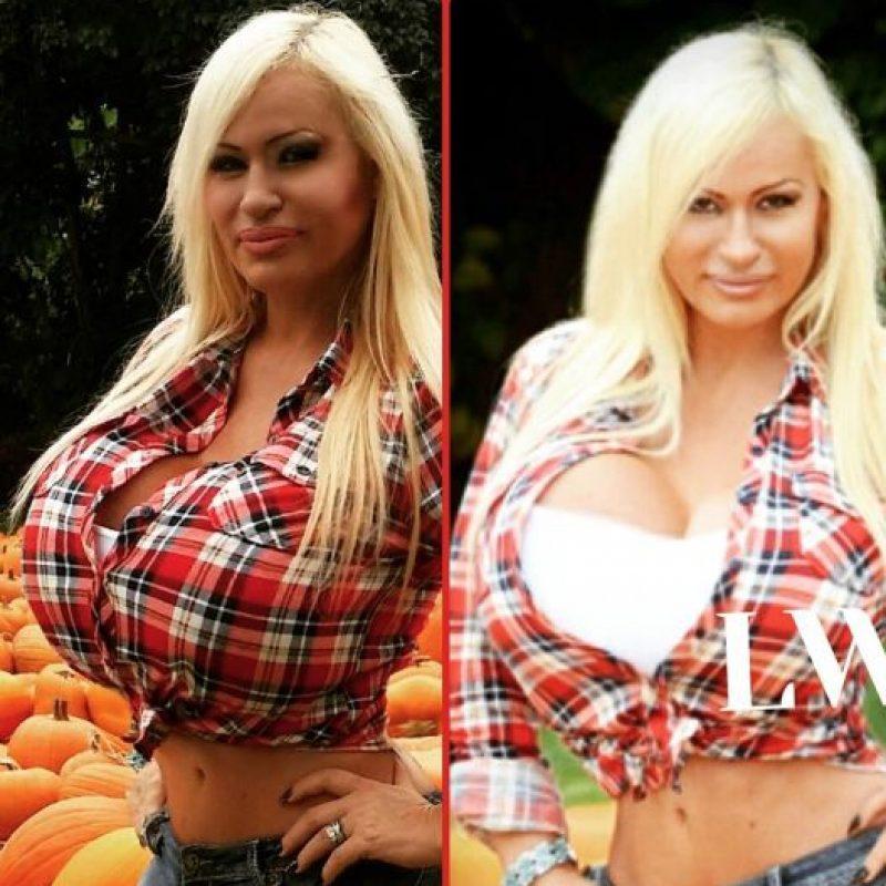 Comenzó con implante de senos. Foto:Lacey Wildd/Facebook
