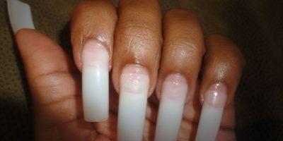 Si no se cuidan bien, la humedad puede dar pie a hongos. Foto:Pinterest