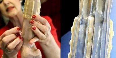 Creado en 2011 por la doctora sudafricana Sonette Ehlers, es un condón dentado que atrapa el pene del atacante. Foto:Flickr