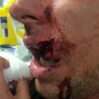 Así fue el corte en la boca de Luke Dorn. Foto:twitter.com/lukedorn