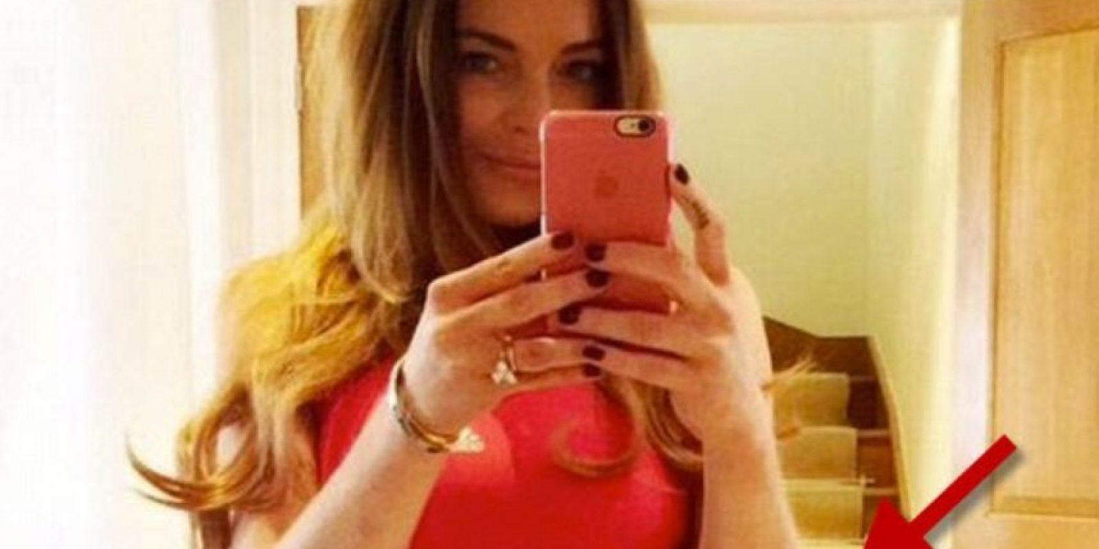 Lindsay Lohan debe saber que no solo debería invertir en cirugías. Foto:Instagram