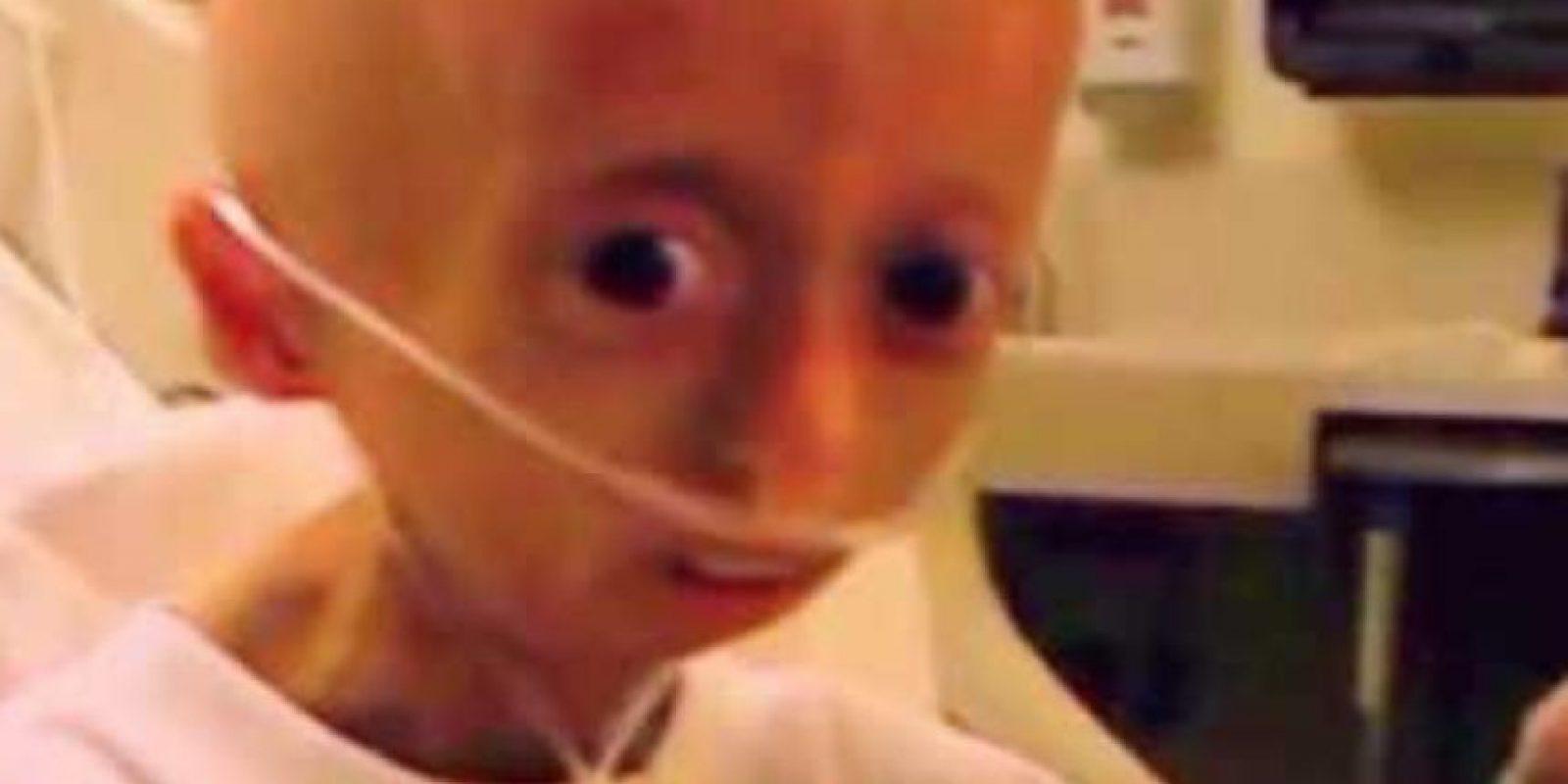 Tenía progeria, extraña condición genética que causa el envejecimiento prematuro. Foto:Hayley Okines/Facebook