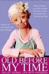 Hayley se hizo famosa en vida por dos libros que hicieron sobre ella. Foto:Hayley Okines/Facebook