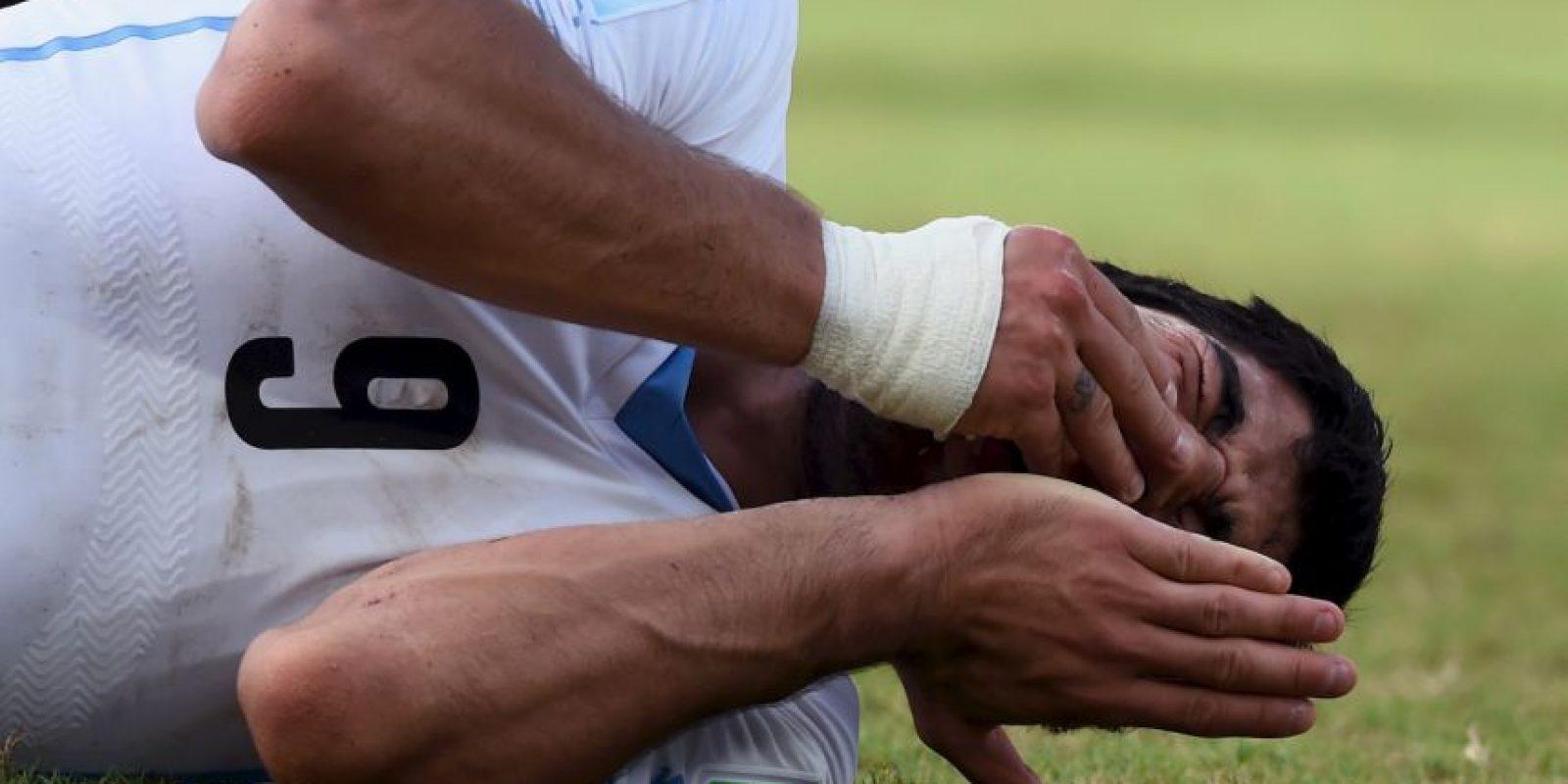 El mordedor más conocido es Luis Suárez Foto:Getty Images