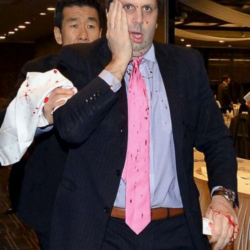El pasado 4 de marzo, el político fue acuchillado en el rostro Foto:Getty Images