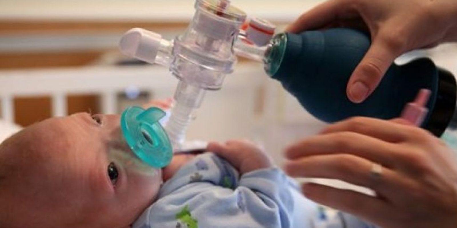 3. Hermoso bebé que nació sin nariz Foto:AP