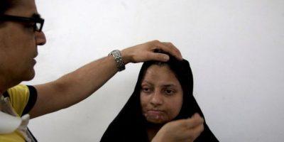 Cada día se generan inumerables historias de ataques a mujeres en Pakistán, un país en el que, bajo la ideología islámica, el género femenino está sometido a estrictas leyes y severos castigos. Uno de ellos son los ataques con ácido. Foto:AP