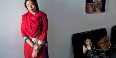 Shahmalak ha reconstruido los rostros de seis mujeres, injertando las cejas y aplicando cirugía reconstructiva. Foto:AP