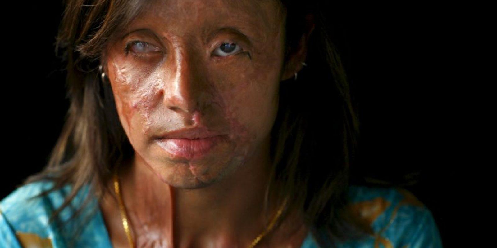 Violencia física: Foto:Getty Images