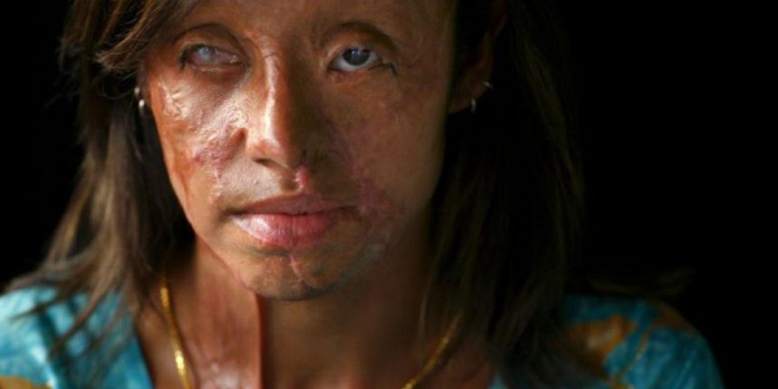 Violencia física: Foto:vía Getty Images