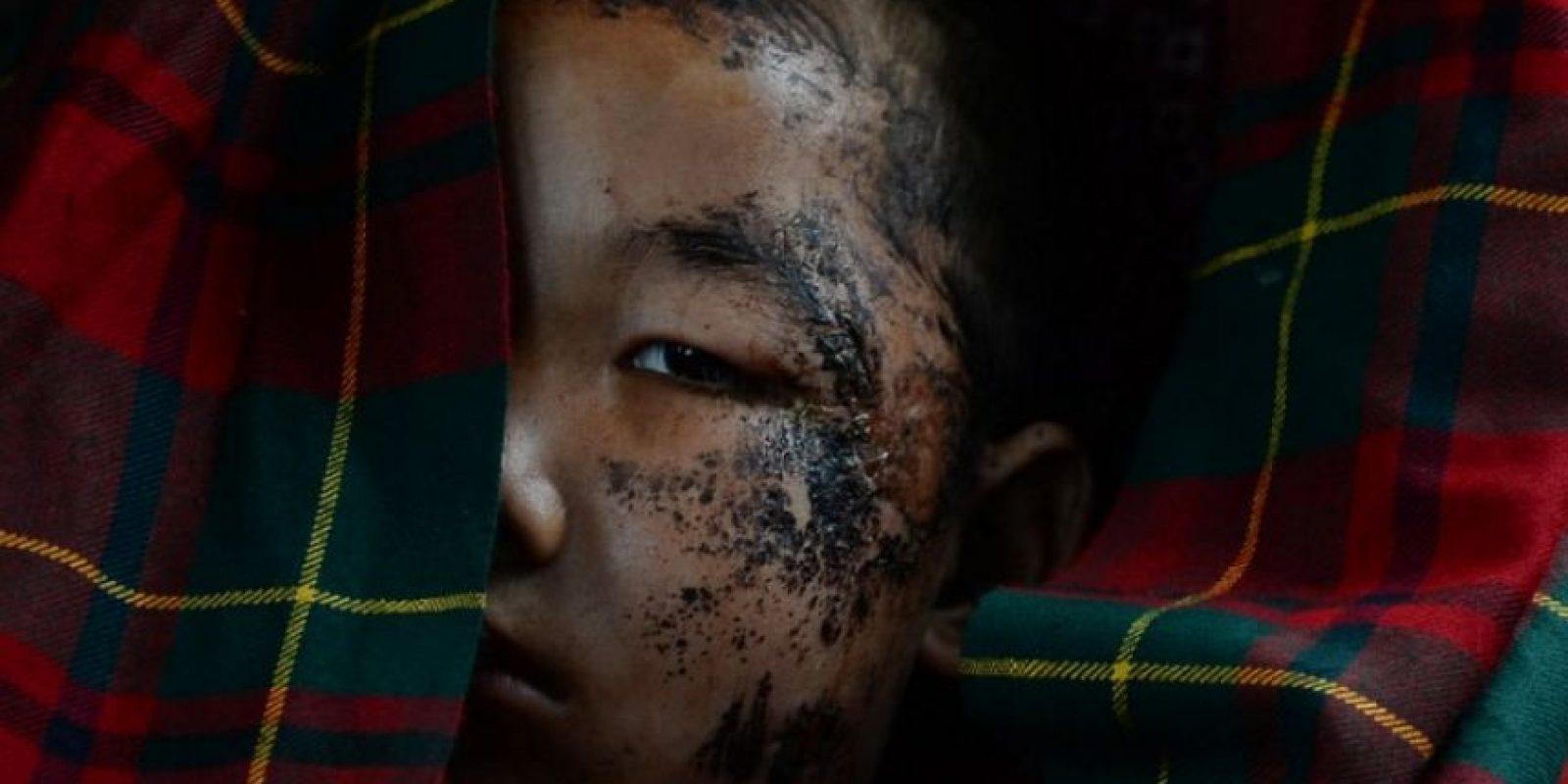 """Además, también existe un problema de malnutrición entre los niños nepalíes que """"seguramente irá a peor y aumentarán los casos"""" tras lo ocurrido. Foto:AFP"""