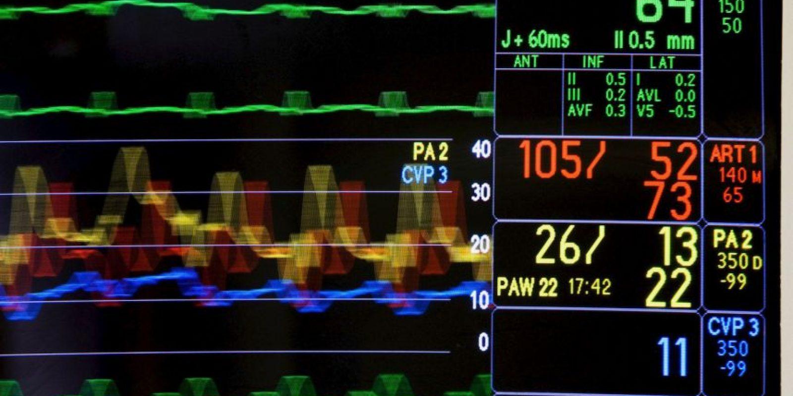 5. Algunos expertos han propuesto reglamentar el suministro de riñones por donantes vivos remunerados, algo a lo que la OMS y sus Estados Miembros se oponen. Foto:Getty Images