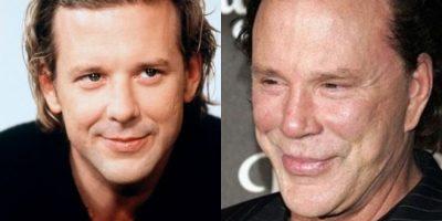 FOTOS. Estos famosos pasaron de ser guapos a no tan atractivos