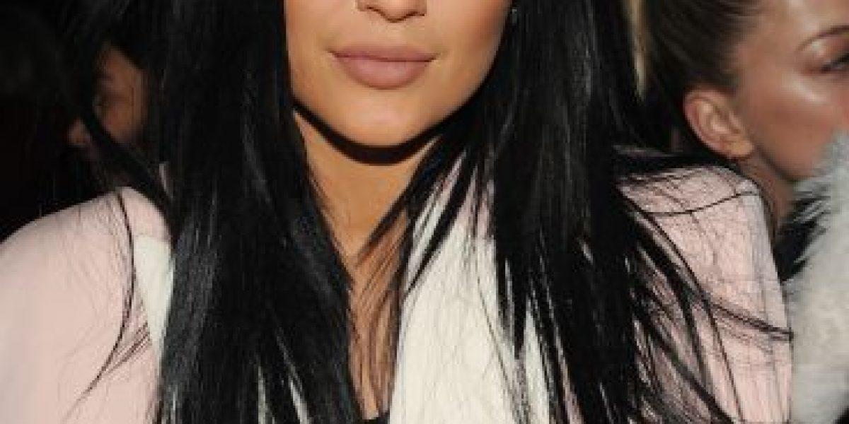Kylie Jenner confiesa que sus labios no son naturales
