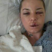 4. Su novio fue encarcelado y trató de suicidarse. Ella subió las fotos de su golpiza a redes. Foto:vía Twitter
