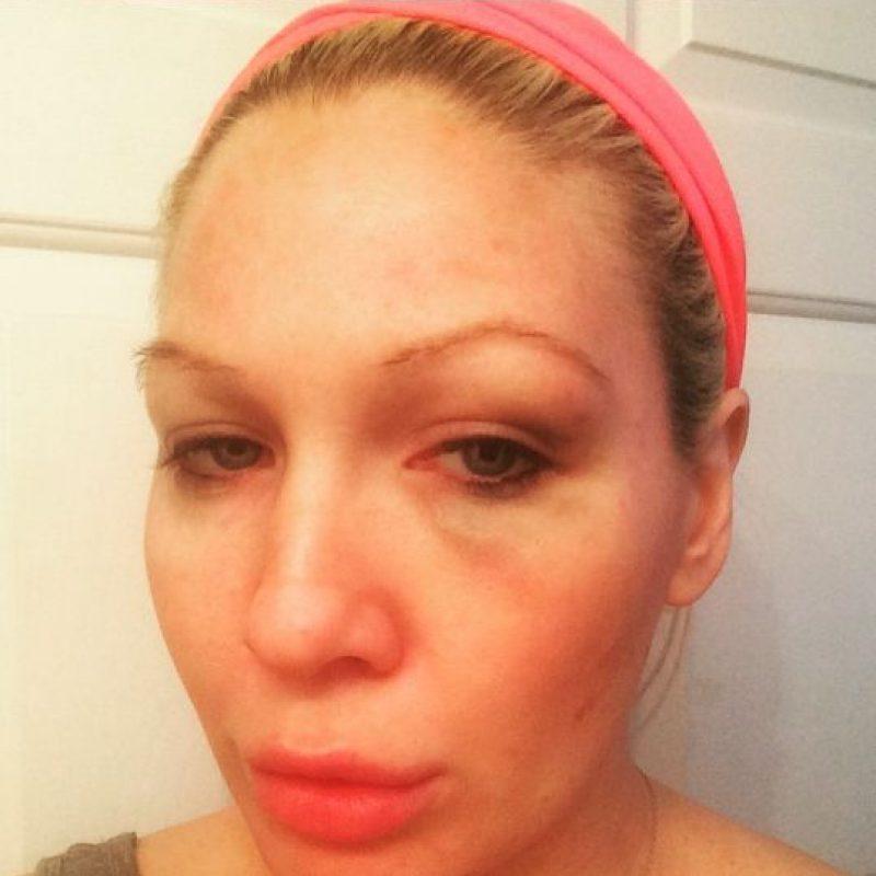 La exdiva de la WWE se encontraba en un estacionamiento cuando fue abordada por dos jóvenes que la golperaron en el ojo izquierdo. Foto:Vía instagram.com/jillianhall1
