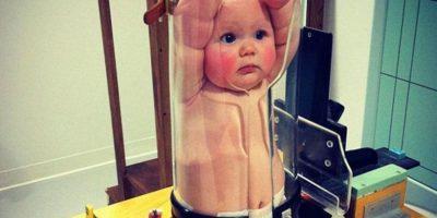 El niño en realidad es la imagen de un producto llamado Pigg O Stat. De esta manera, se protege la integridad del bebé y no se le expone a la radiación. Foto:vía Reddit