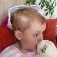 Así quedó Helena luego de que un niño jugara en su cabeza con una rasuradora. Foto:Vía Facebook/JuliaMuir