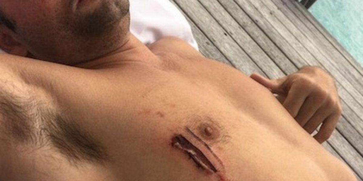 Amigo de Justin Bieber fue mordido por un tiburón