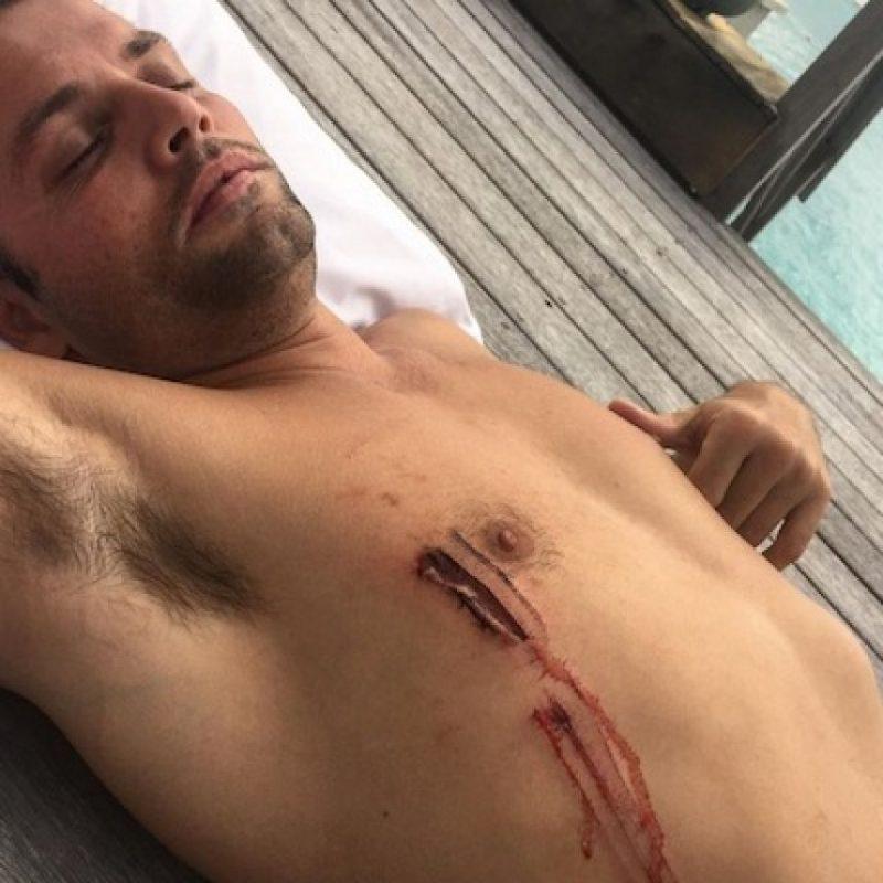Justin compartió una imagen mostrando la profunda herida que un tiburón le había dejado su amigo Joe Termini. Foto:Instagram/Justin Bieber