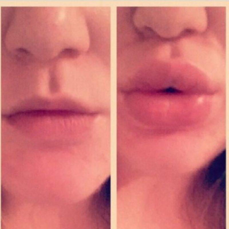Porque como nadie tiene miles de dólares para agrandar sus labios, qué mejor que arruinarlos. Foto:vía Twitter