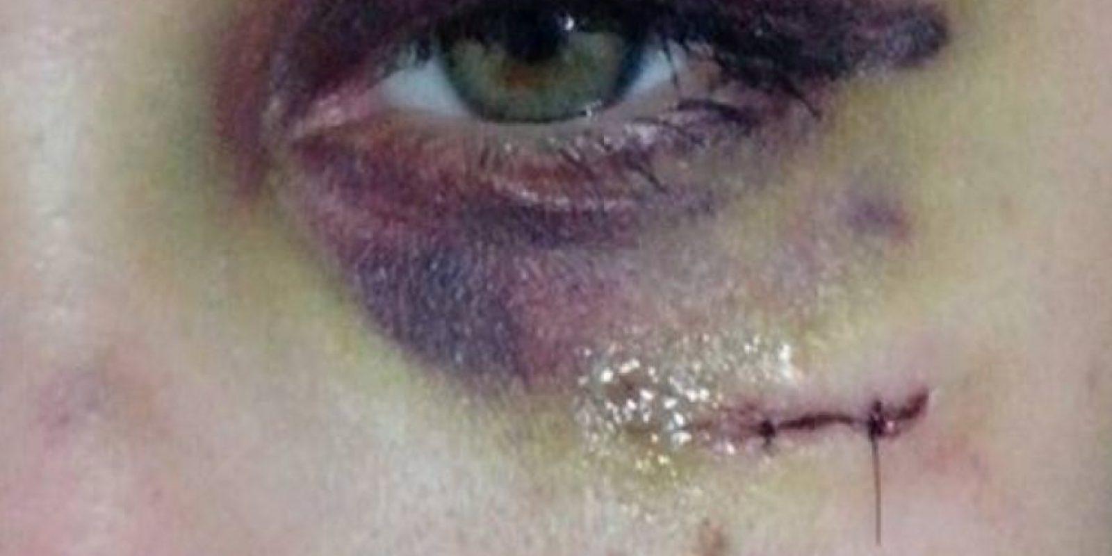 """La joven confirmó que está amenazada por su novio, aunque ya hizo la denuncia policial. Su caso podría equipararse a los que sucedieron en Estados Unidos y que dieron forma al proyecto """"Project Unbreakable"""". Foto:vía Facebook"""