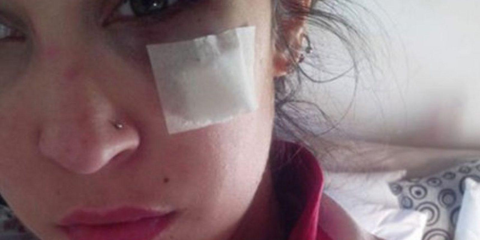 Nadia Rey, de Chacabuco, Argentina, publicó la foto que muestra cómo su novio casi destroza su ojo. Este se hizo viral. Foto:vía Facebook