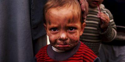 Más allá de sus consecuencias sanitarias y sociales, el maltrato infantil tiene un impacto económico que abarca los costos de la hospitalización, de los tratamientos por motivos de salud mental, de los servicios sociales para la infancia y los costos sanitarios a largo plazo. Foto:vía Getty Images