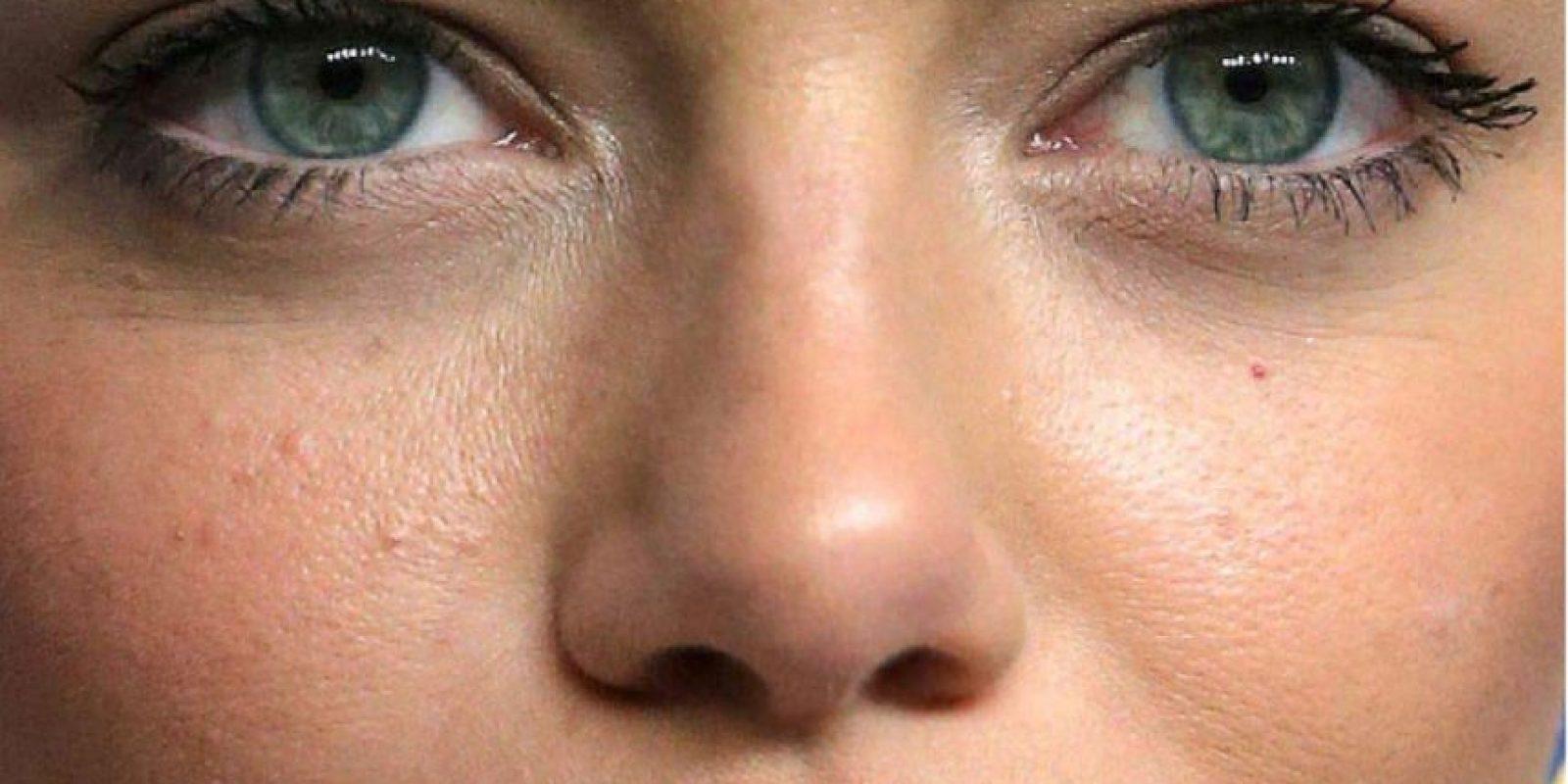 Emma Stone también tiene lo suyo, incluido acné. Foto:vía Getty Images