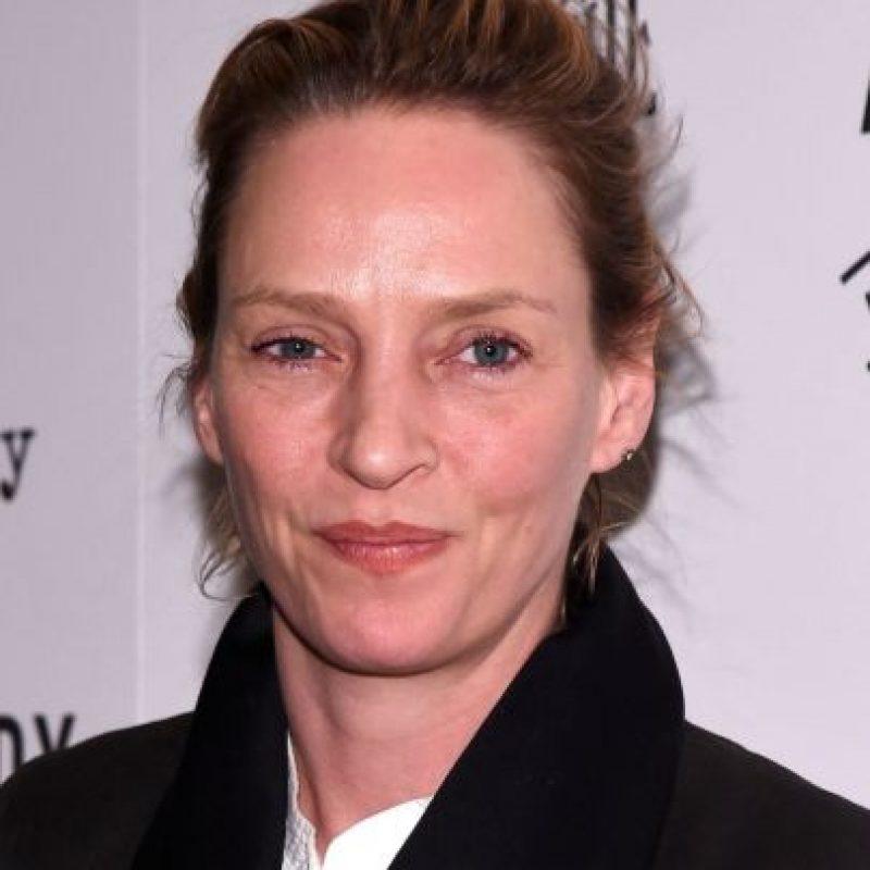 Tras las cirugía Foto:IMDB