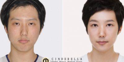 En Corea del Sur la belleza es un tem social. Foto: vía Korean Plastic Surgery /Tumblr