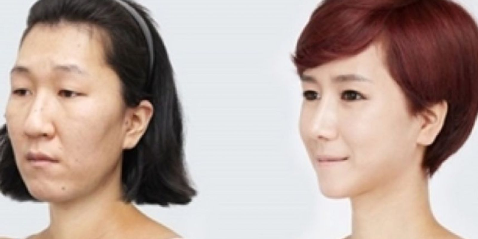 Esta ayuda a triunfar. Foto: vía Korean Plastic Surgery /Tumblr