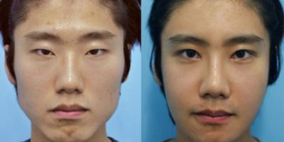 """Aquel que no es """"bello"""" es relegado. Foto: vía Korean Plastic Surgery /Tumblr"""
