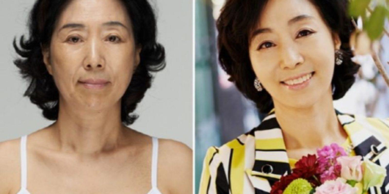 Los padres obligan a sus hijos a hacerse cirugías. Foto: vía Korean Plastic Surgery /Tumblr