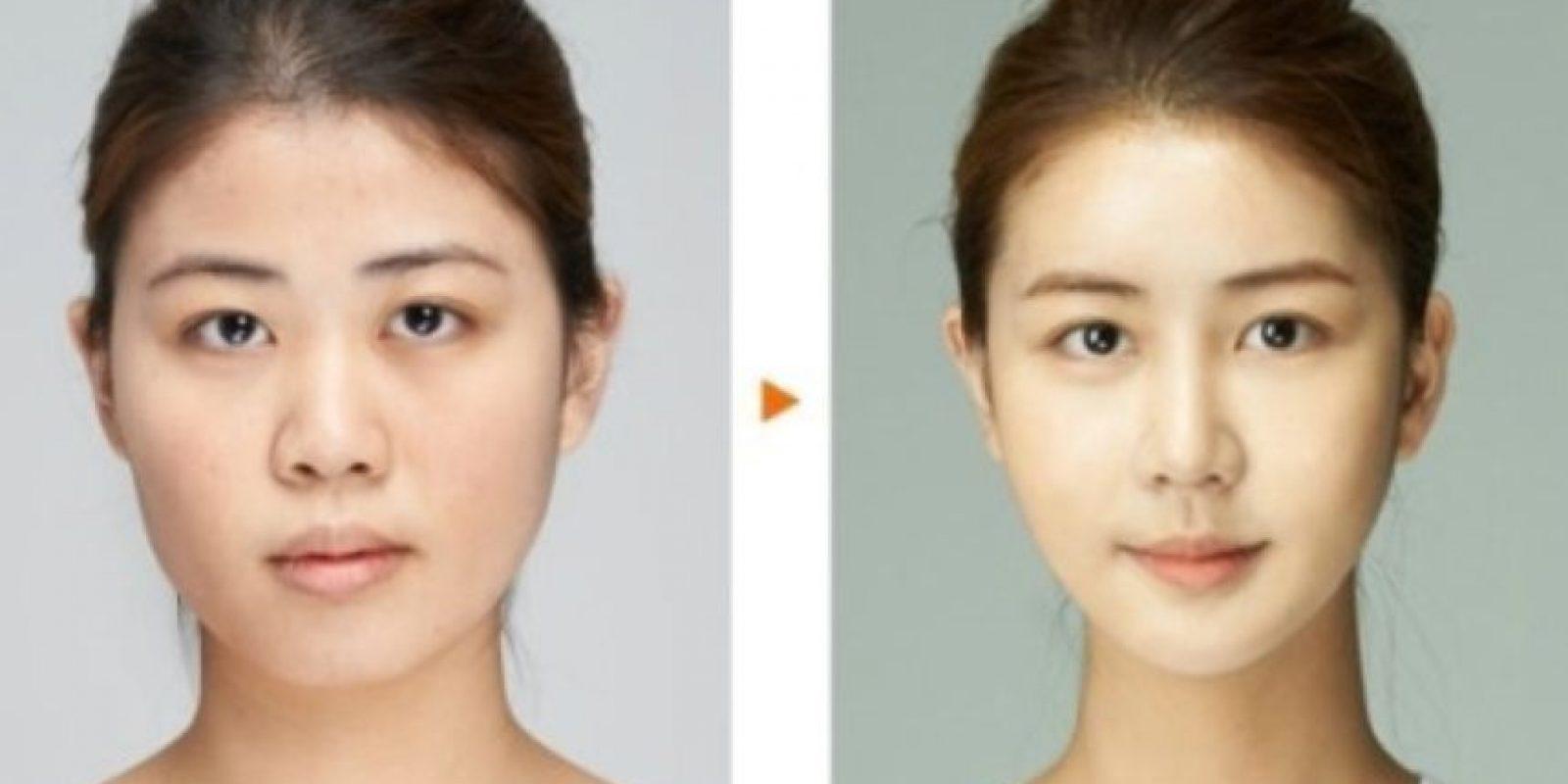 Este es un cánon común en la belleza oriental. Foto: vía Korean Plastic Surgery /Tumblr