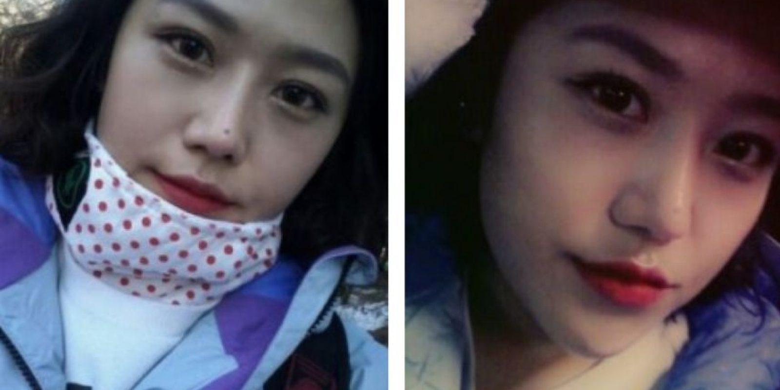 Los modelos de operaciones son de mujeres añiñadas. Foto: vía Korean Plastic Surgery /Tumblr