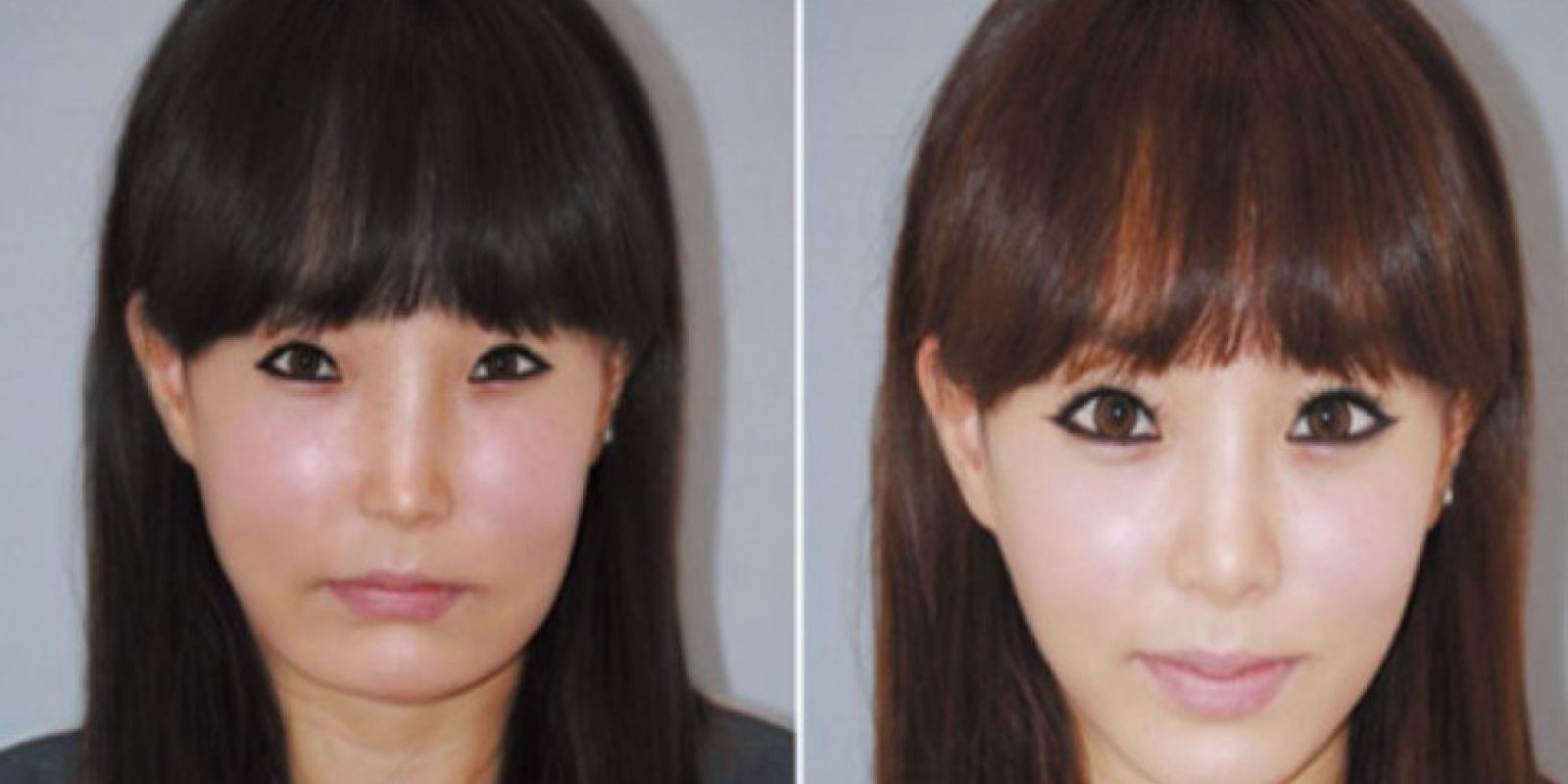 Por eso sus rasgos son tan finos. Foto: vía Korean Plastic Surgery /Tumblr