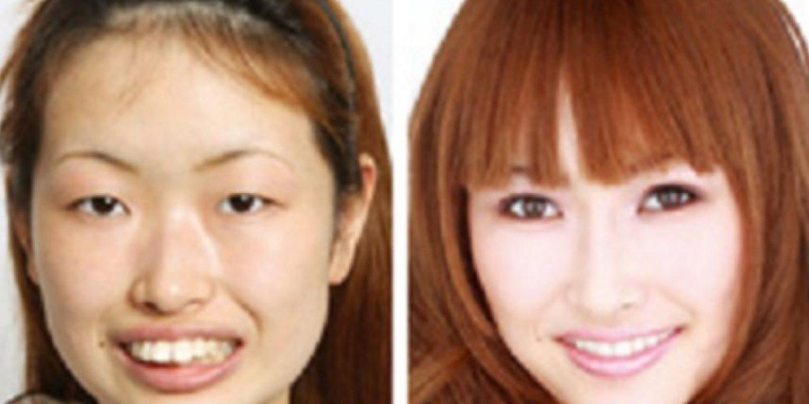 Las mujeres dicen sentirse más seguras consigo mismas. Foto: vía Korean Plastic Surgery /Tumblr