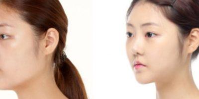 Esto, al modelo occidental. Foto: vía Korean Plastic Surgery /Tumblr