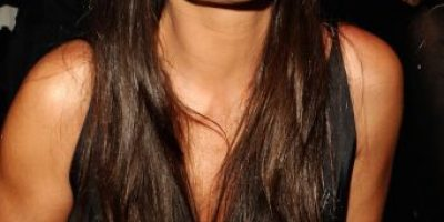 """FOTOS: 9 celebridades que terminaron con el rostro """"derretido"""""""
